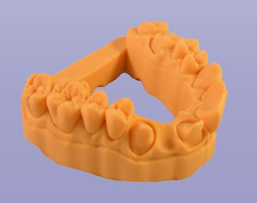 「歯」を出力する3Dプリンター『3Dent™ printer』!いよいよ医療業界にも進出